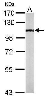 PCAF Antibody (PA5-22046)