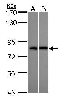 DDX3Y Antibody (PA5-22050) in Western Blot