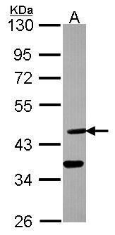 DHH Antibody (PA5-22054)