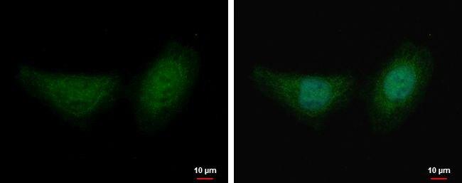 Fumarase Antibody (PA5-22064)