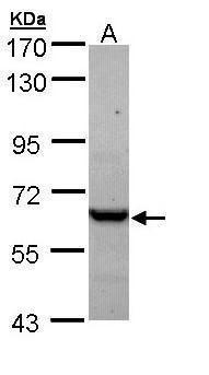 TCP-1 epsilon Antibody (PA5-22069) in Western Blot