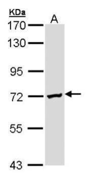 DAZ2 Antibody (PA5-22077) in Western Blot