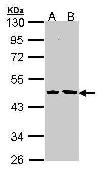EPHX1 Antibody (PA5-22082) in Western Blot