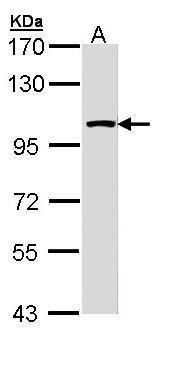 LARS2 Antibody (PA5-22086) in Western Blot