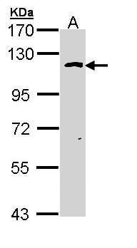 OGT Antibody (PA5-22092) in Western Blot