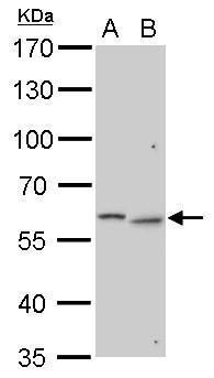 GALNS Antibody (PA5-22098) in Western Blot