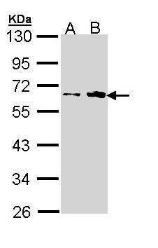 FKTN Antibody (PA5-22106) in Western Blot