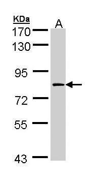 Factor XIII A Antibody (PA5-22110) in Western Blot