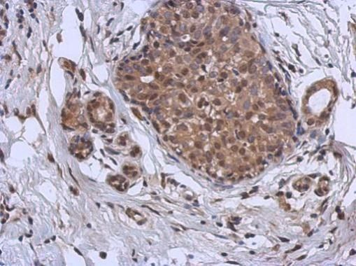 MURF1 Antibody (PA5-22112) in Immunohistochemistry (Paraffin)