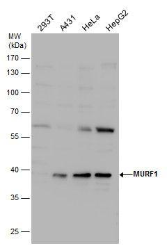 MURF1 Antibody (PA5-22112) in Western Blot