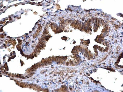 MHC II HLA-DR Antibody (PA5-22113) in Immunohistochemistry (Paraffin)