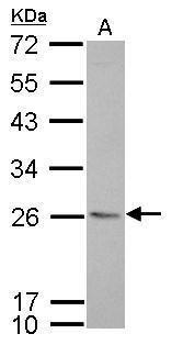 MHC II HLA-DR Antibody (PA5-22113) in Western Blot