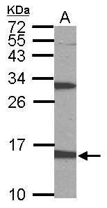 PTS Antibody (PA5-22121) in Western Blot