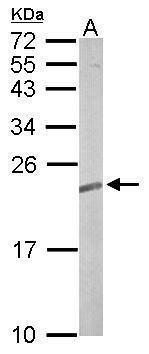 RRAS2 Antibody (PA5-22123) in Western Blot