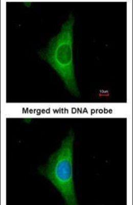 Cytokeratin 20 Antibody (PA5-22125) in Immunofluorescence