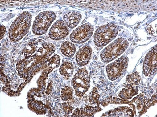 Citrate Synthetase Antibody (PA5-22126) in Immunohistochemistry (Paraffin)