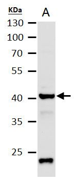 Citrate Synthetase Antibody (PA5-22126) in Western Blot