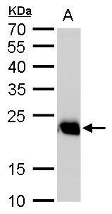 RAB6A Antibody (PA5-22127) in Western Blot