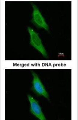 AIP Antibody (PA5-22128) in Immunofluorescence