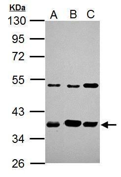 AIP Antibody (PA5-22128) in Western Blot