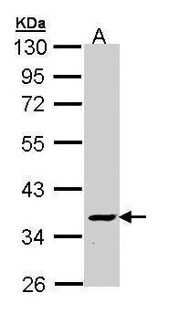 V-ATPase C2 Antibody (PA5-22131) in Western Blot