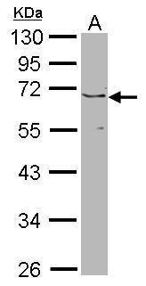 JMJD6 Antibody (PA5-22132) in Western Blot