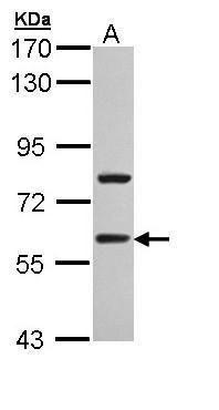 TBLR1 Antibody (PA5-22136) in Western Blot