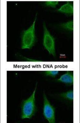 PPA1 Antibody (PA5-22144)