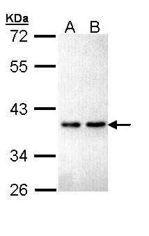 ZNF346 Antibody (PA5-22146) in Western Blot
