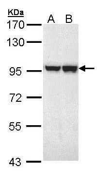MALT1 Antibody (PA5-22147) in Western Blot