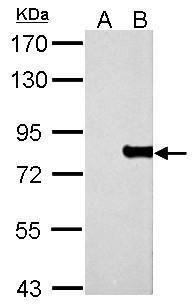 MX1 Antibody (PA5-22149) in Western Blot