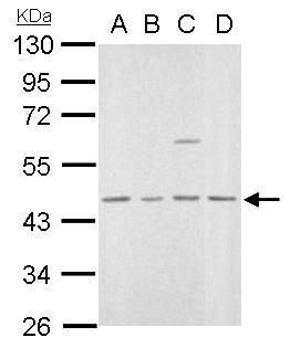 MVD Antibody (PA5-22164) in Western Blot
