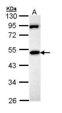 MPP1 Antibody (PA5-22166) in Western Blot