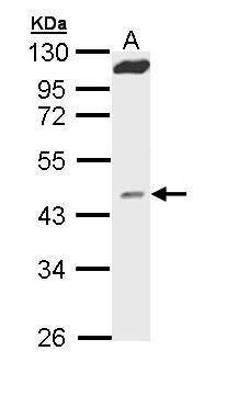 MVD Antibody (PA5-22169)