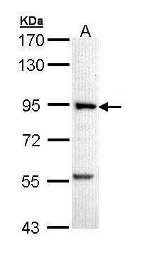 PFKM Antibody (PA5-22172) in Western Blot