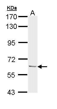Ubiquilin 1 Antibody (PA5-22174) in Western Blot