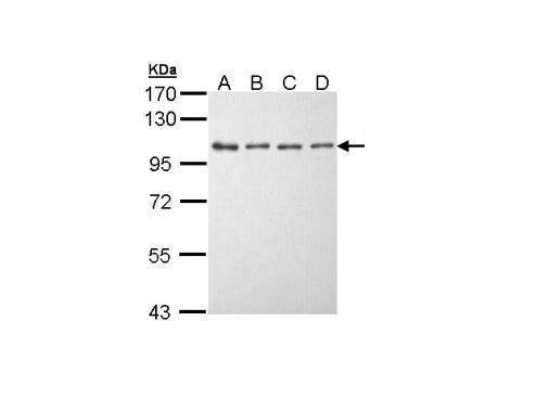 EEF2K Antibody (PA5-22175) in Western Blot