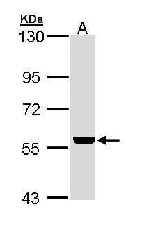 ADCK4 Antibody (PA5-22180) in Western Blot