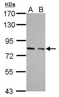 cGKI Antibody (PA5-22182) in Western Blot