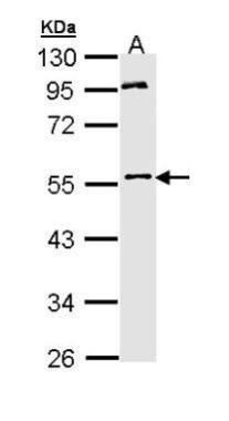 MPP1 Antibody (PA5-22185) in Western Blot