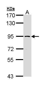 SSRP1 Antibody (PA5-22186) in Western Blot