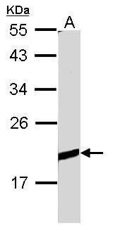 BCL2L10 Antibody (PA5-22190) in Western Blot