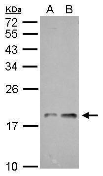 NDUFAB1 Antibody (PA5-22191) in Western Blot