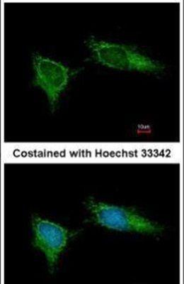 NDUFB5 Antibody (PA5-22192)