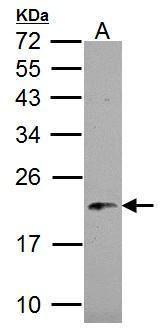 NDUFB5 Antibody (PA5-22192) in Western Blot