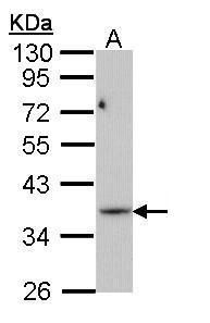 PRPS1L1 Antibody (PA5-22202) in Western Blot
