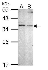 NOSIP Antibody (PA5-22206) in Western Blot