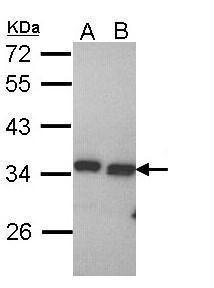 PECR Antibody (PA5-22207) in Western Blot