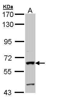 Intestinal Alkaline Phosphatase Antibody (PA5-22210) in Western Blot