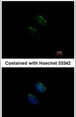 MGAT3 Antibody (PA5-22212)